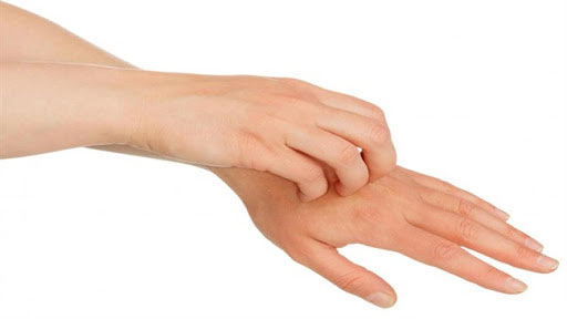 حساسیت پوستی